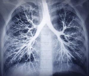 Диагностика бронхиальной астмы -бронхография