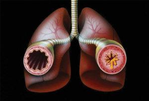 Бронхиальная астма - воспаление бронхов
