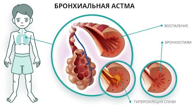 что такое мокрота при астме
